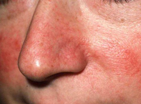 Покраснение кожи в области возникновения купероза