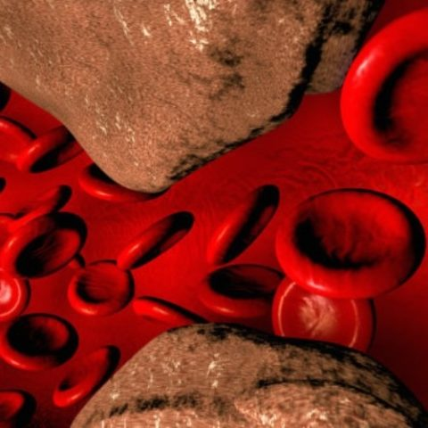 Жировые бляшки (на фото) являются причиной закупорки артерий, нарушения кровообращения и развития тяжелых заболеваний.