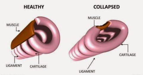 При патологии наблюдается резкое падение тонуса артерий (см. фото)
