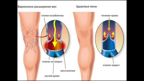 Пример здоровой и больной ноги