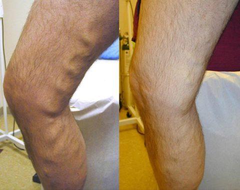 Разница между здоровой и больной ногой