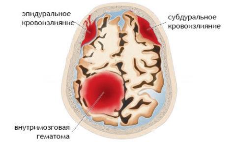 Разные локализации мозговых кровоизлияний