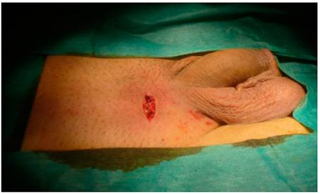 Разрез при операции Мармара