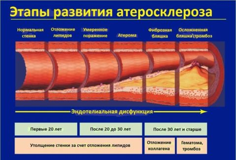 С возрастом повышается вероятность образования атеросклеротических бляшек в артериях