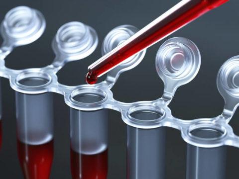 Снижение уровня тестостерона в крови – нежелательные последствия