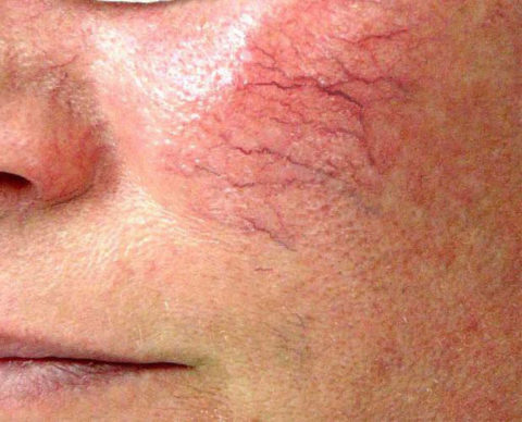 Так выглядит нарушенное кровообращение на лице