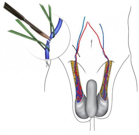 Суть оперативного лечения заключается в пресечении воспаленных участков сосудистого русла