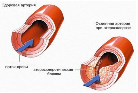 Сужение просвета артерии