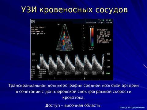 Такую картинку выдаёт аппаратура ультразвукового обследования сосудов