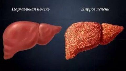 Цирроз – необратимое состояние, при котором функциональные гепатоциты замещаются соединительной тканью