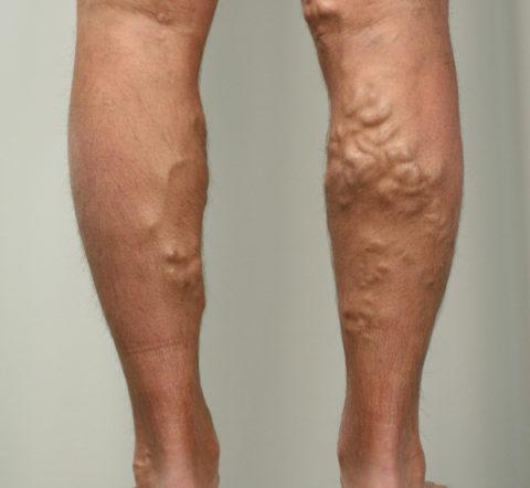 Варикоз ног на поздней стадии развития