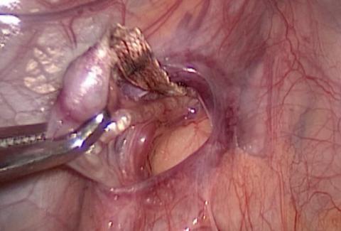 Выделение вены для последующего лигирования (лапароскопия)