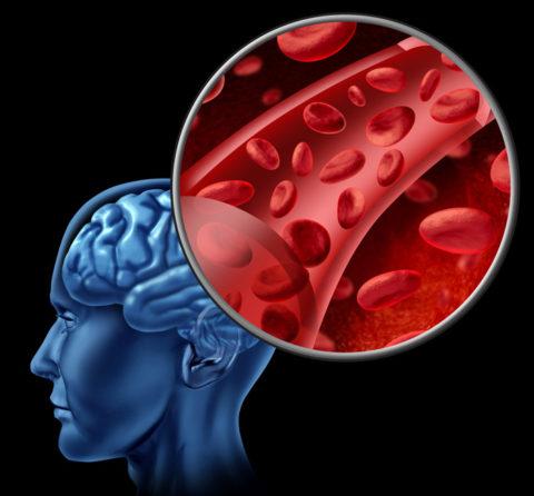 Закупорка крупной артерии приводит к необратимым ишемическим изменениям в ЦНС