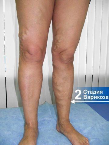 2 стадия варикоза