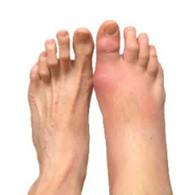 суставы пальцев ног что это