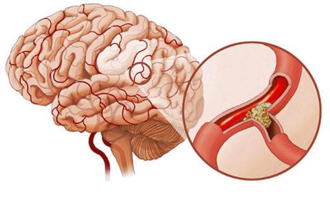 Атеросклероз может быть последствием пагубного пристрастия
