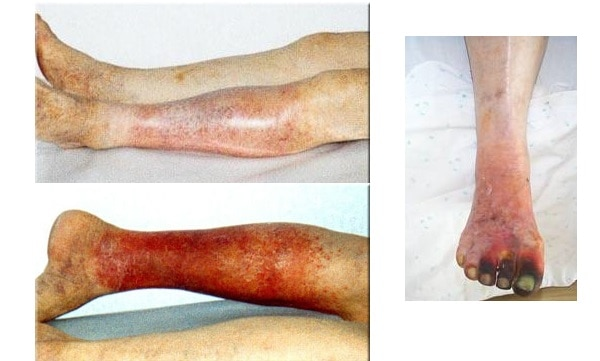 Фото: Последствия нарушений кровообращения