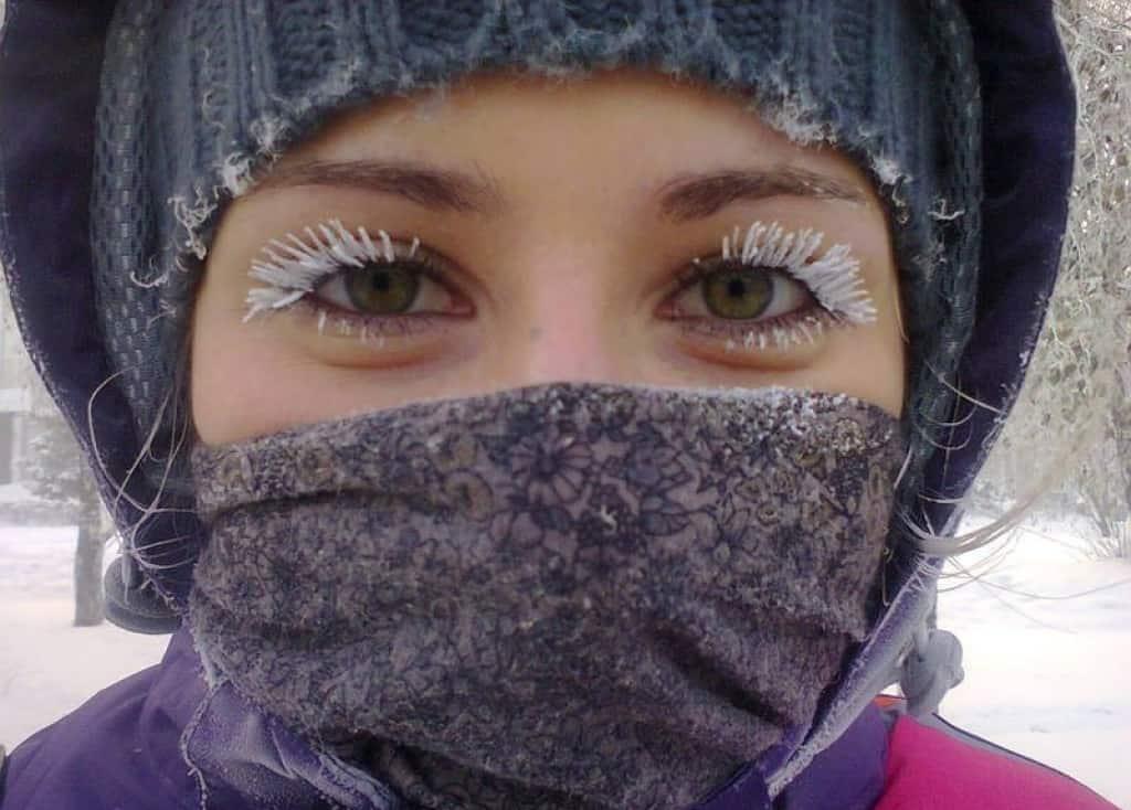 В качестве причины появления сосудистой сетки можно назвать и действие холода.