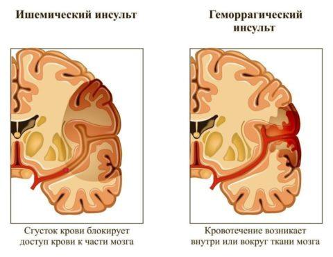 Инсульт – одно из возможных последствий