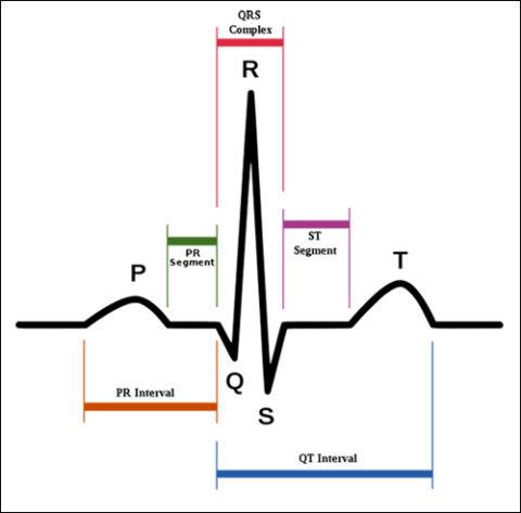 Интерпретация сердечного цикла на бумаге.