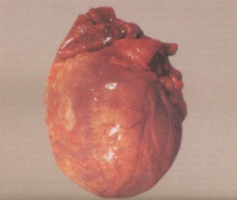 """Кардиомиопатия (""""алкогольное сердце"""")"""