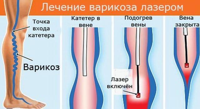Пример того, как проходит лечение с помощью лазера