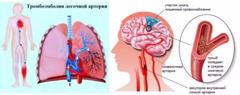 Органы-мишени, которые поражаются тромбозом