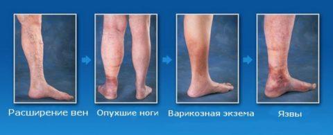 Осложнения при развитии заболевания