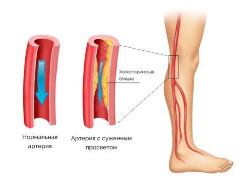 Первыми при атеросклерозе страдают дистальные отделы конечностей