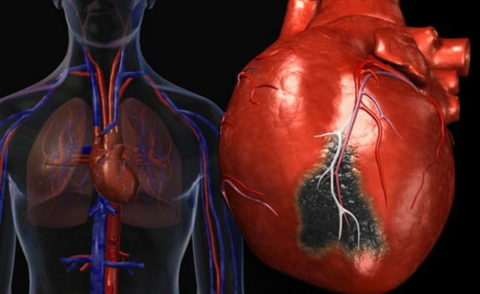 Последствия разрыва жировой бляшки, которая вызвала быстро нарастающюю окклюзию сосуда