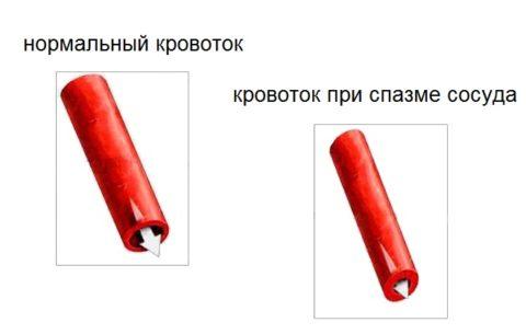 Пример кровотока при спазме сосуда