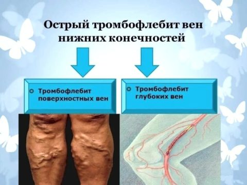 Пример заболеваний