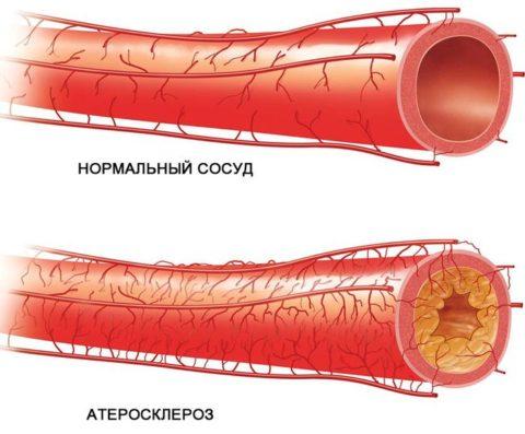 Пример здоровой и больной артерии