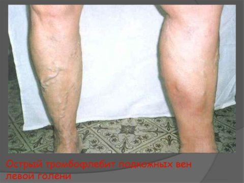 Развитие острого тромбофлебита