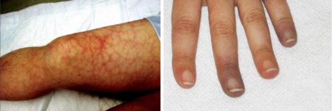 Сетчатое ливедо и телеангиэктазии – симптомы тромбофилии, заметные при осмотре во время консультации