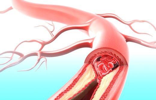 Схема закупоренной артерии