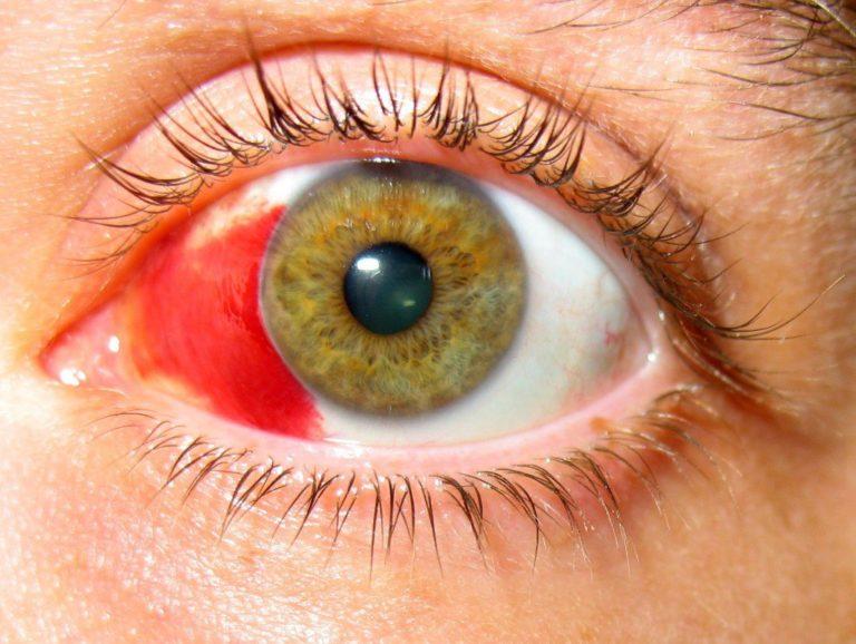 Как сделать чтобы капилляры лопнули в глазах