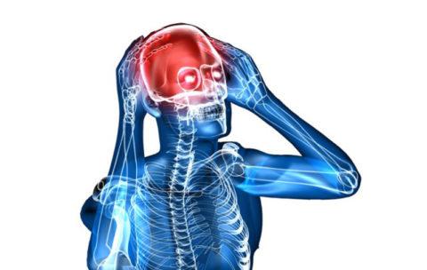 Сильные головные боли – возможный симптом спазма