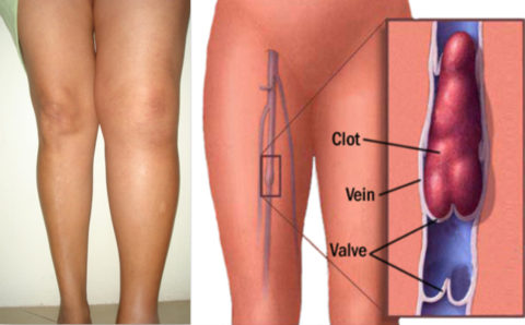 Симптоматика тромбофлебита четко видна на левой конечности