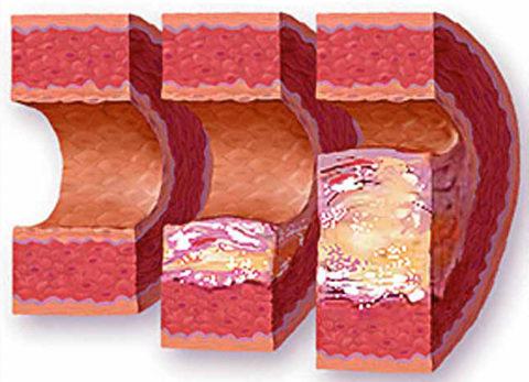 Сосуд, пораженный атеросклерозом в продольном разрезе