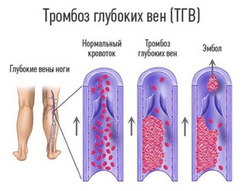 Тромбозы глубоких вен