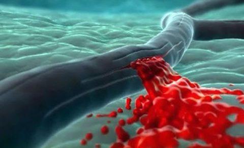 В чем причина хрупкости капилляров?