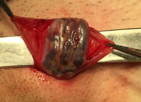 Пораженные вены после извлечения при операции
