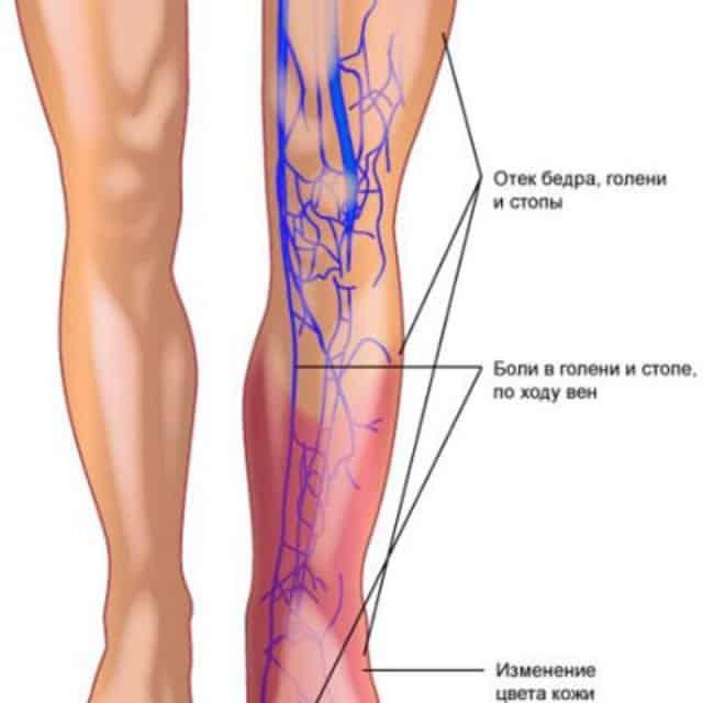 Изменение на конечности при развитии заболевания