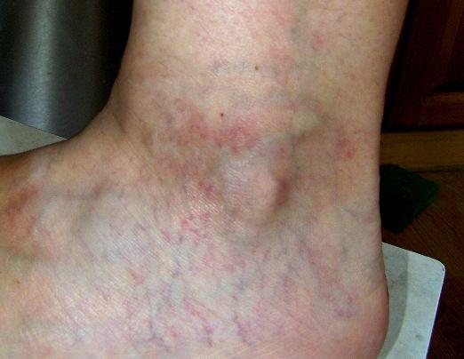 Расширенные вены хорошо видны даже через кожу