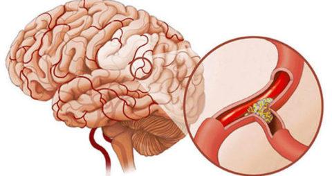 Закупорка сосудов мозга может иметь серьезные последствия