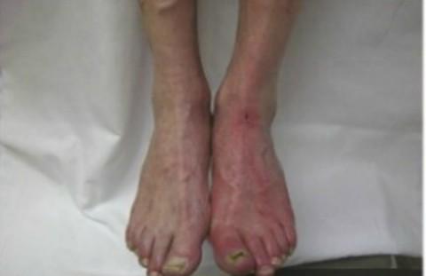 Внешний вид стоп, голени при атеросклерозе