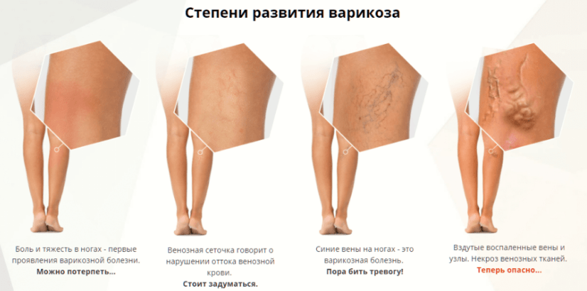 Проявление венозной сетки как повод для обращения к доктору.