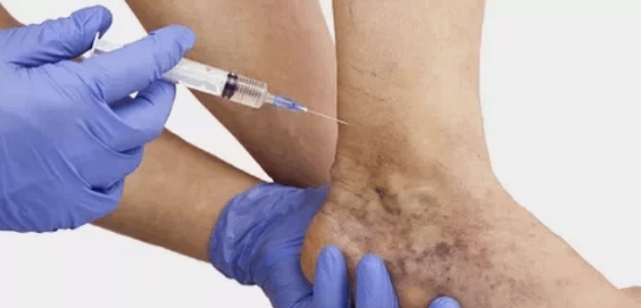 Как лечить варикоз без операции.