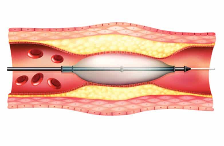 Чрезкожная ангиопластика – надежда при инфаркте миокарда.